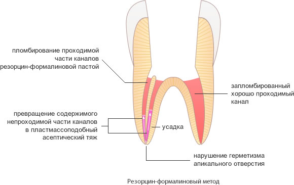 Пломбирование каналов зубов резорцином